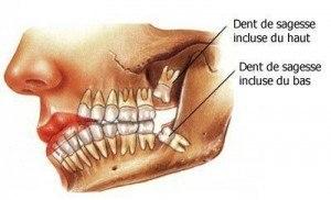 dent-de-sagesse-cliniquestcharles