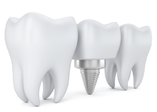 cliniquestcharles:implantdentaire.jpg