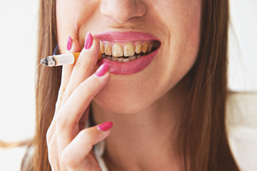 Clinique_dentaire_St-Charles_cigarette-ARTICLEconsequences_mauvaise_hygiene_dentaire.jpg