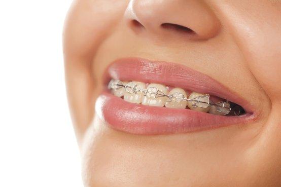 DentStCharles_Orthodontie1.jpg