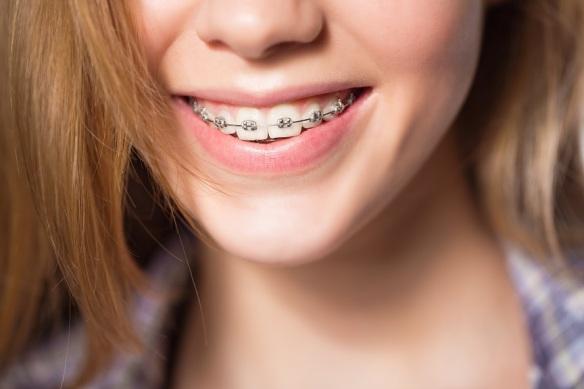 orthodontiste.jpg