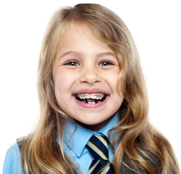 Orthodontie Clinique dentaire Saint-Charles