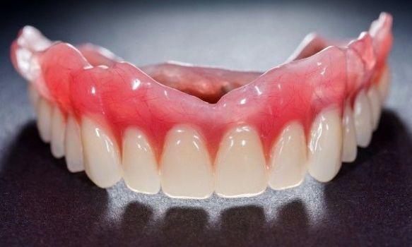 Prothèse dentaire. Clinique dentaire Saint-Charles.