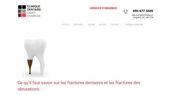 Dent fracturée. Dentiste urgence.png