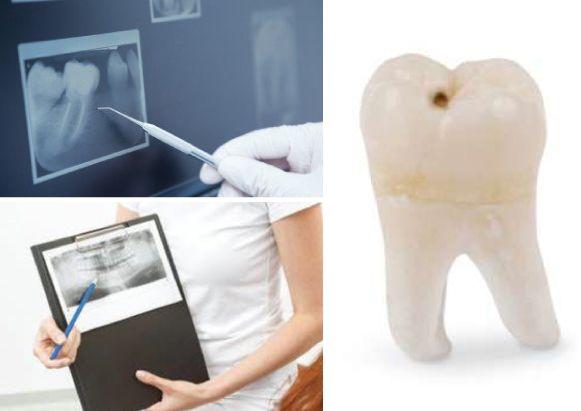 Dent de sagesse. Clinique dentaire Saint Charles