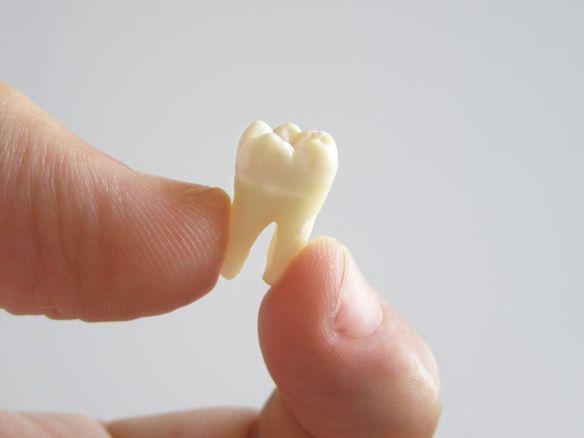 Ugence dentaire. Dentiste pour enfants