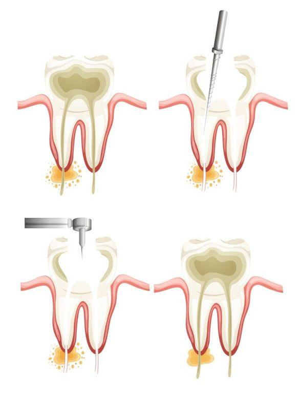 Traitement de canal. Clinique dentaire Saint Charles