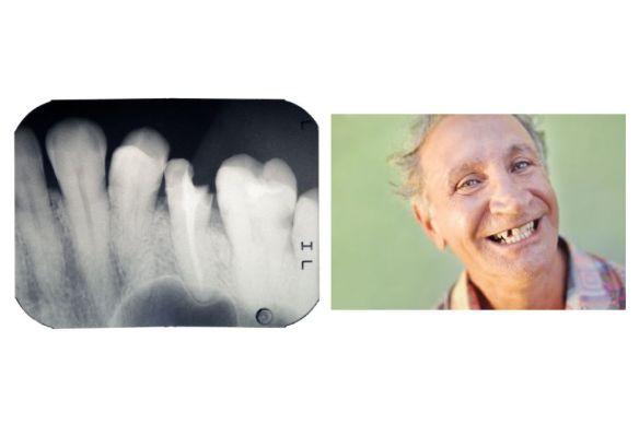 Urgence dentaire DIMANCHE. Clinique dentaire Saint Charles