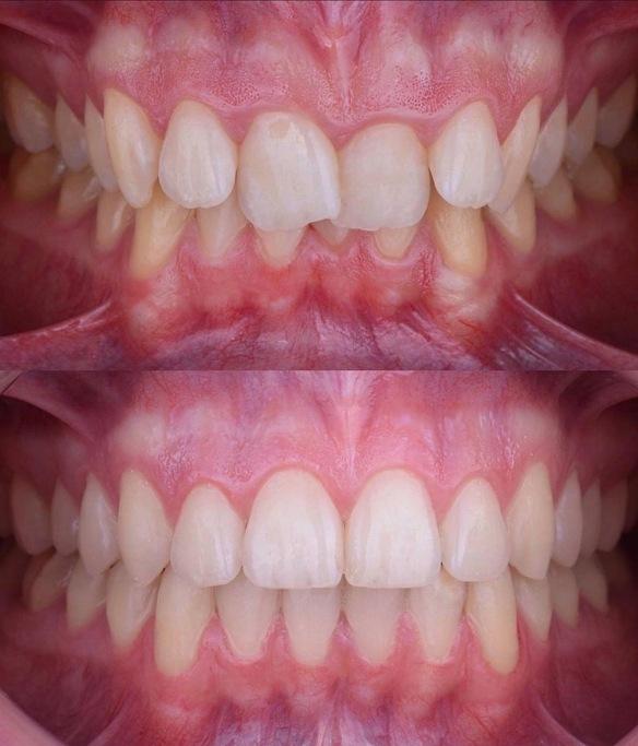 Invisalign. Clinique dentaire Saint Charles.jpeg