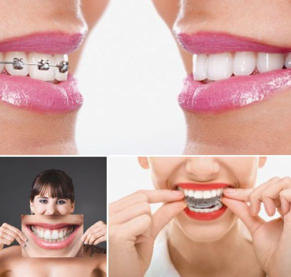 Orthodontiste. Clinique dentaire Saint Charles